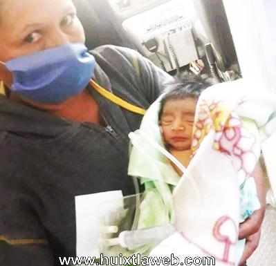 En Huixtla piden ayuda para bebé que nació con intestino de fuera