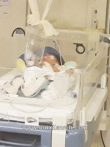 Se recupera en el pediátrico de Tuxtla niño que nació con intestinos de fuera